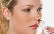 کنترل کردن خونریزی بینی با طب سنتی