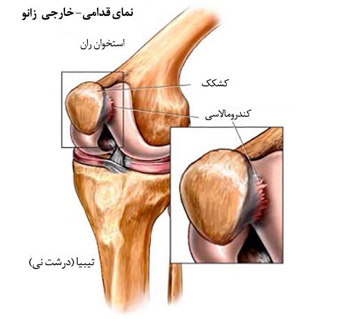 علل تخریب نرمی غضروف کشکک زانو(کندرو مالاسی)و درمان آن با طب سنتی