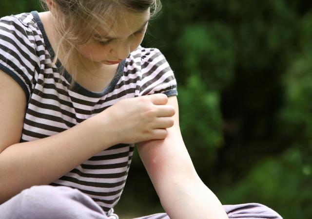 درمان گزیدگی حشرات با طب سنتی