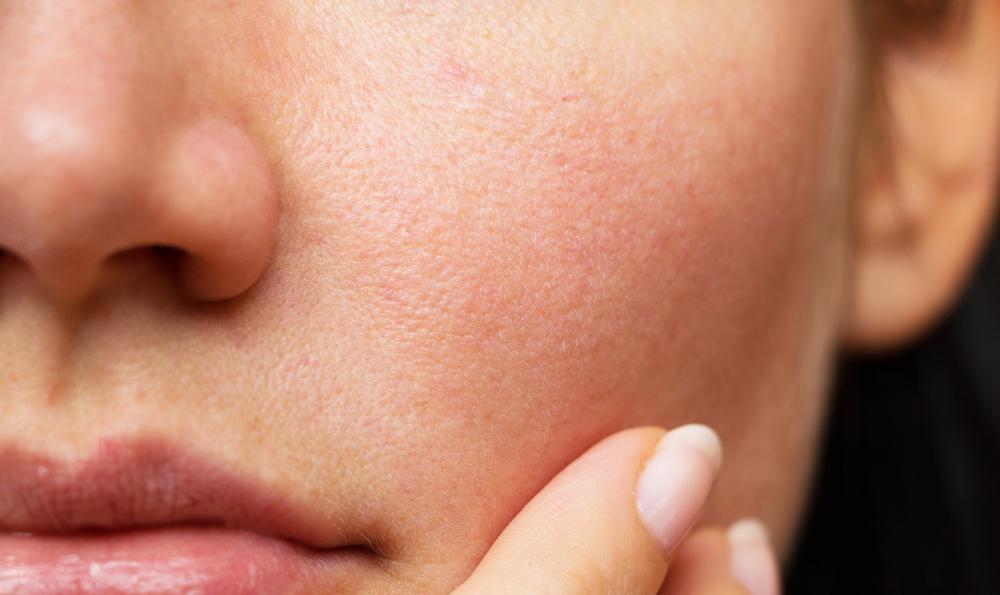 بستن منافذ پوست با طب سنتی