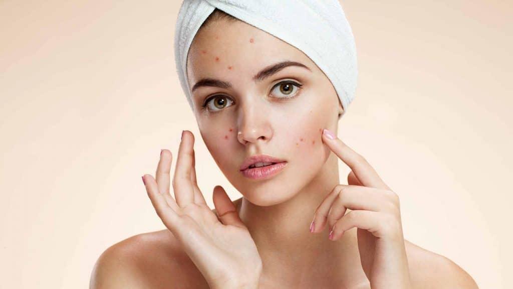 درمان جوش صورت و بدن در طب سنتی