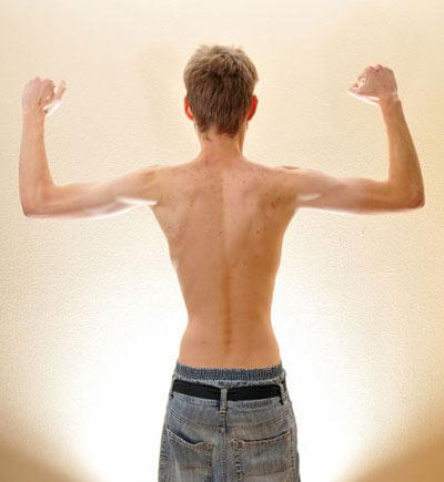 افزایش وزن افراد لاغر با طب سنتی