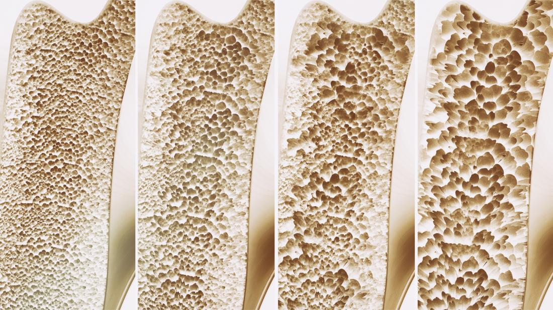 درمان پوکی استخوان در طب سنتی