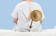 کیست مویی و درمان آن در طب سنتی