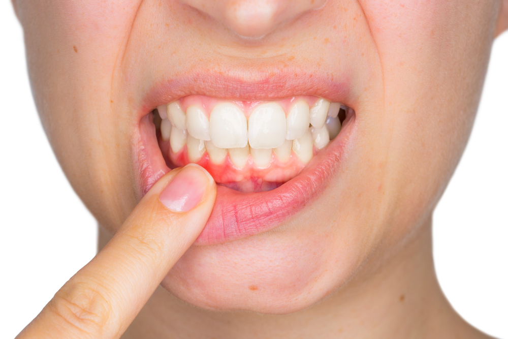 عفونت دندان و درمان آن با طب سنتی