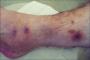 درمان خارش بدن و پوست پوست شدن دست