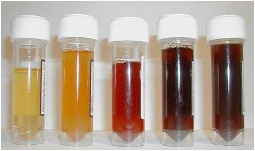 علت رنگ های مختلف ادرار و درمان آن