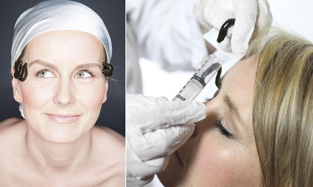 فواید زالو درمانی صورت