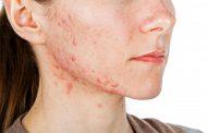 درمان جوش صورت با طب سنتی
