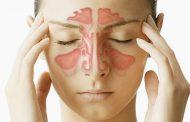 درمان سینوزیت مزمن