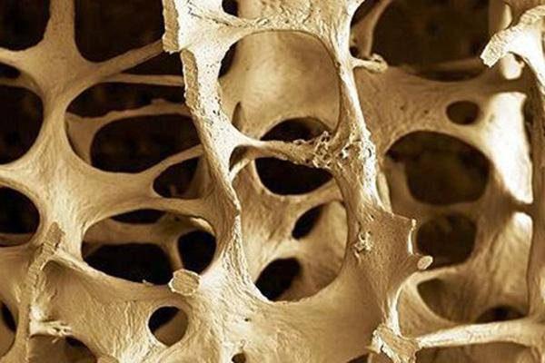 درمان پوکی استخوان با طب سنتی