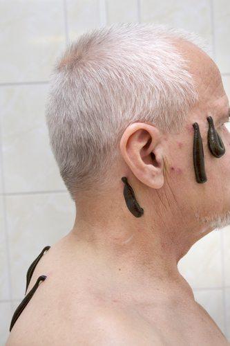 درمان سر درد با زالو