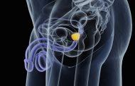 درمان پروستات در طب سنتی