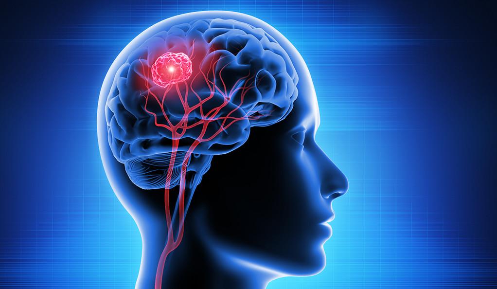 درمان تومور مغزی با طب سنتی