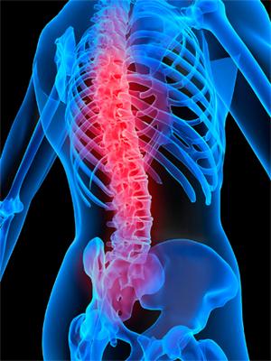 درمان تنگی کانال نخاع در طب سنتی