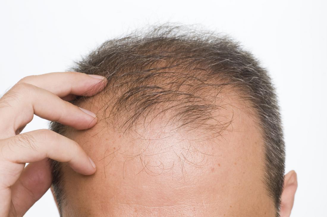درمان ریزش مو بر اثر کم کاری کبد در طب سنتی
