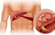 تغذیه بیماران سرطان کبد در طب سنتی