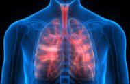 درمان آب اوردن ریه با طب سنتی