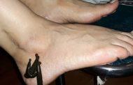 زالو درمانی برای خار پاشنه