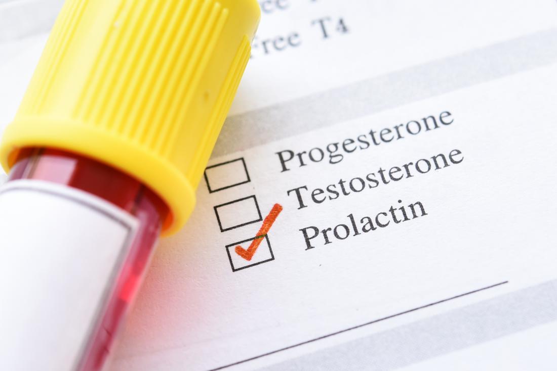 درمان پرولاکتین بالا در طب سنتی