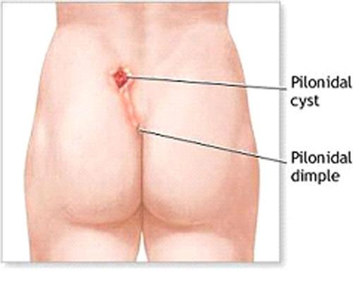 درمان فیستول در طب سنتی