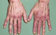 درمان لوپوس با طب سنتی