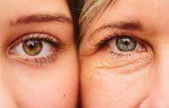 درمان چروک دور چشم با طب سنتی