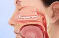 درمان پولیپ بینی در طب سنتی